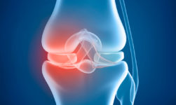 Knee Replacement: Type, Benefits and Possible Risks of this Surgery